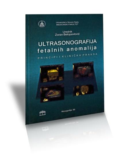 Ultrasonografija fetalnih anomalija, principi i klinička praksa